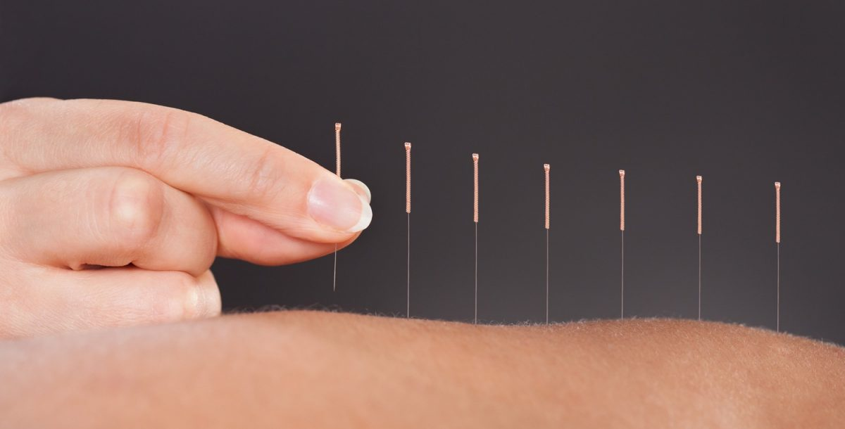 accupuncture-1200x610.jpg
